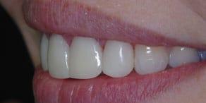 Implantologie beim Zahnarzt in Bremen
