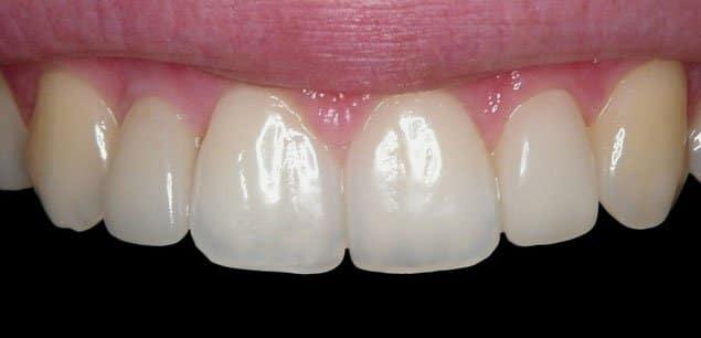 Zahnimplantate Bremen