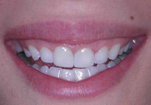 Weiße Zähne lächelnd