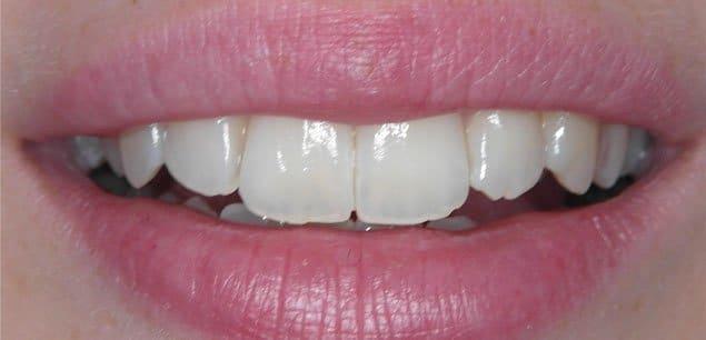 Ästhetische Zahnersatzplanung