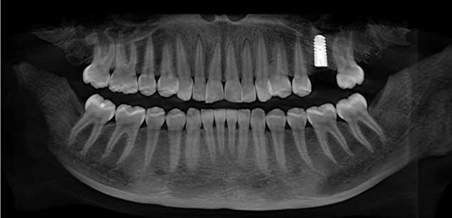 Digitales Röntgen Zahnarzt Bremen