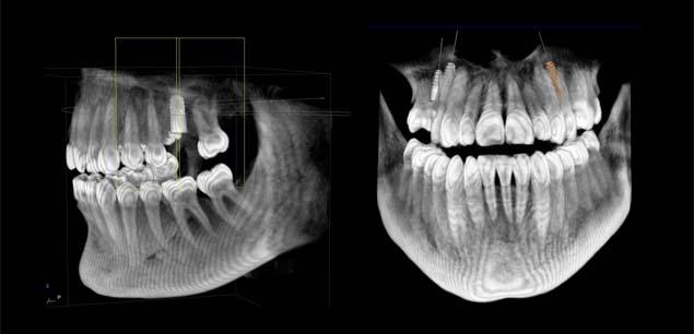 3D Röntgen Zahnarzt Bremen