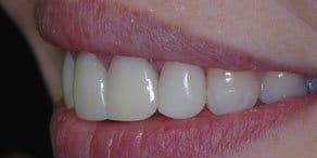 Startseite Implantologie Zahnarzt Bremen
