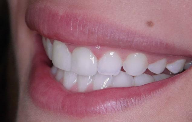 Zahnarztpraxis Vera Klencke - Bleaching Zahnaufhellung