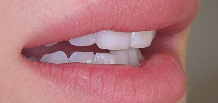 Zahnarztpraxis Vera Klencke - Zahnaufhellung-bleaching - veradent