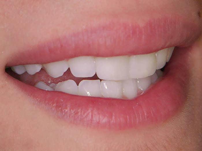 Zahnarztpraxis Vera Klencke - Patientin - Veerings
