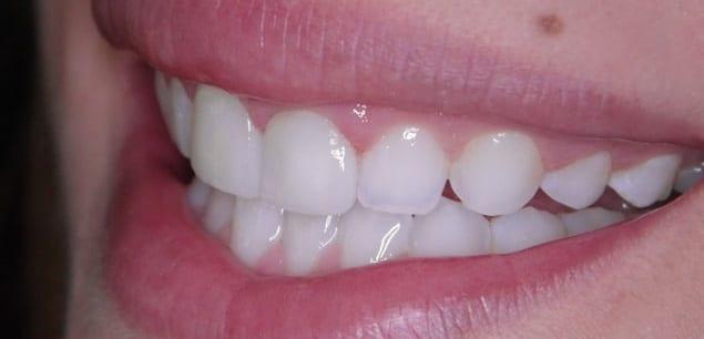 Zahnarzt Bremen Paxis Vera Klencke Bleaching Zahnaufhellung