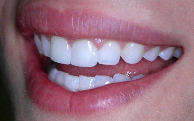 Zahnarzt Bremen Lieblingsfarbe weiss Sommer Aktion Profi Zahnreinigung Bleaching