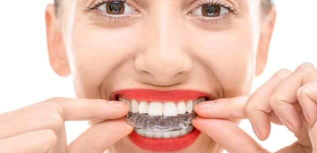 Zahnschiene für gerade Zähne